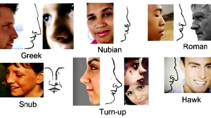 nose_types